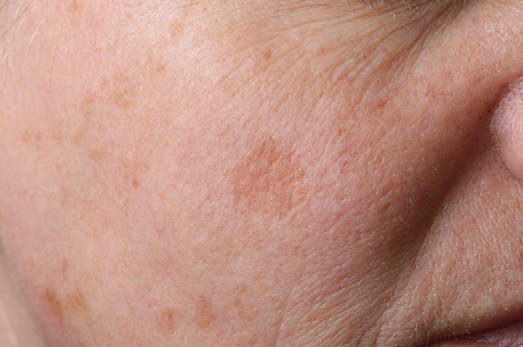 Kann Unsere Haut Ger 252 Che Wahrnehmen Forscher Finden