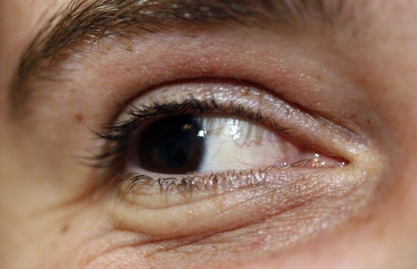 Augen Beim Lügen
