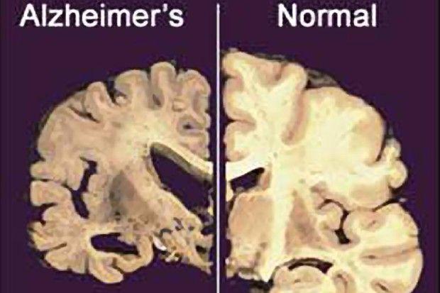 hilft nikotin bei alzheimer