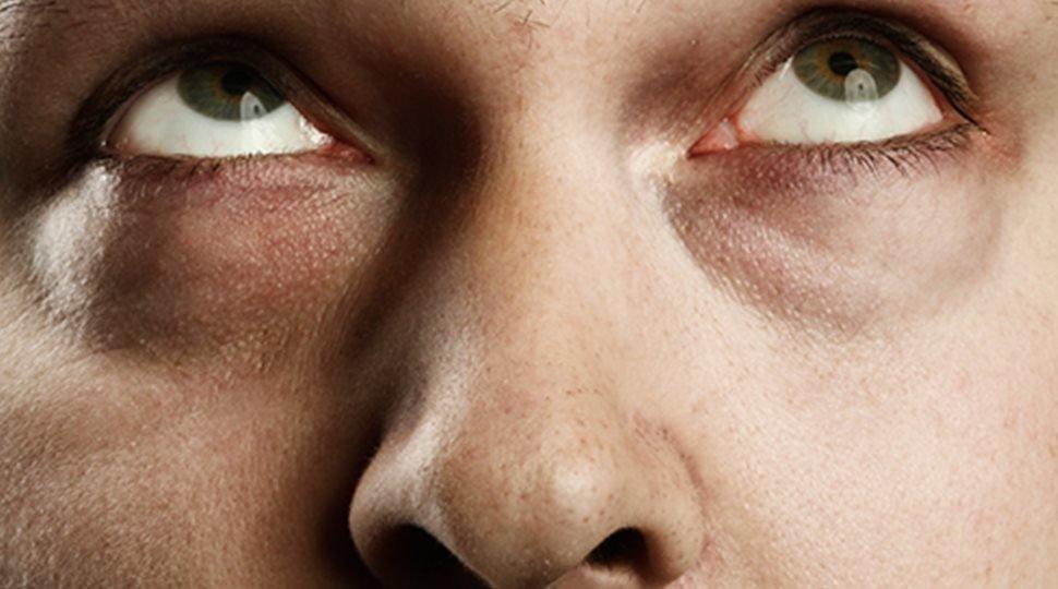 Es ist das Auge wie das Ergebnis der Allergie angeschwollen