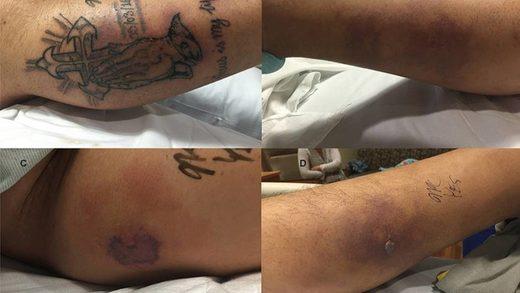 Tödlicher Ausgang Mann Geht Mit Frischem Tattoo Baden Und Wird Von