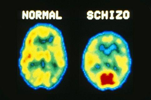 paranoid schizofreni test
