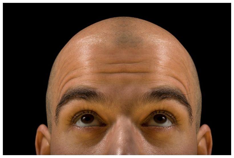 Wachsen Neue Haare Auf Der Glatze Wissenschaft Und Technologie
